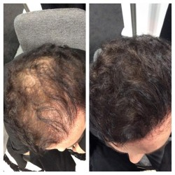 2 Dexe Hair Building Fibers